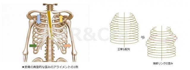 肋骨の歪み1