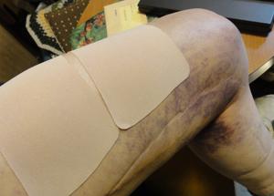 大腿部の肉離れblog01