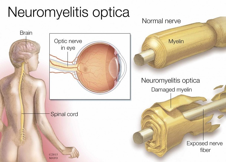Neuromyelitis-optica.jpg