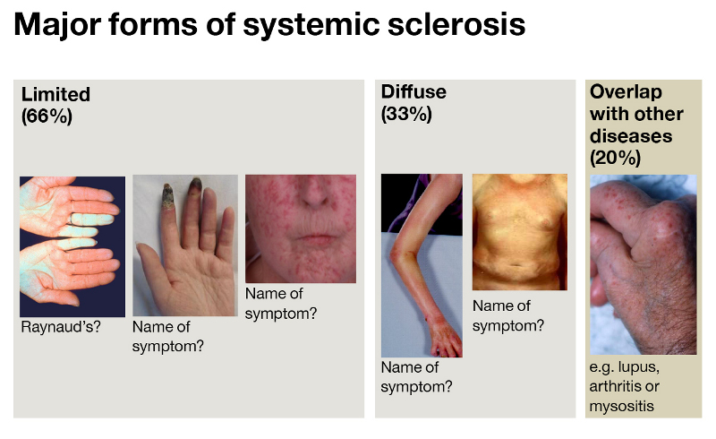 Scleroderma-symptoms.jpg