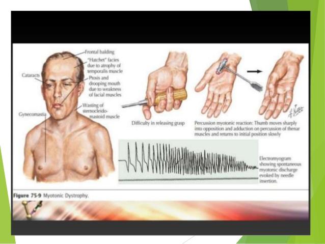 myotonic-dystrophy-7-638.jpg