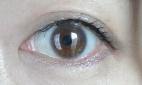 eyelid3.jpg