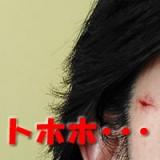 女のくせに顔にすり傷^^;